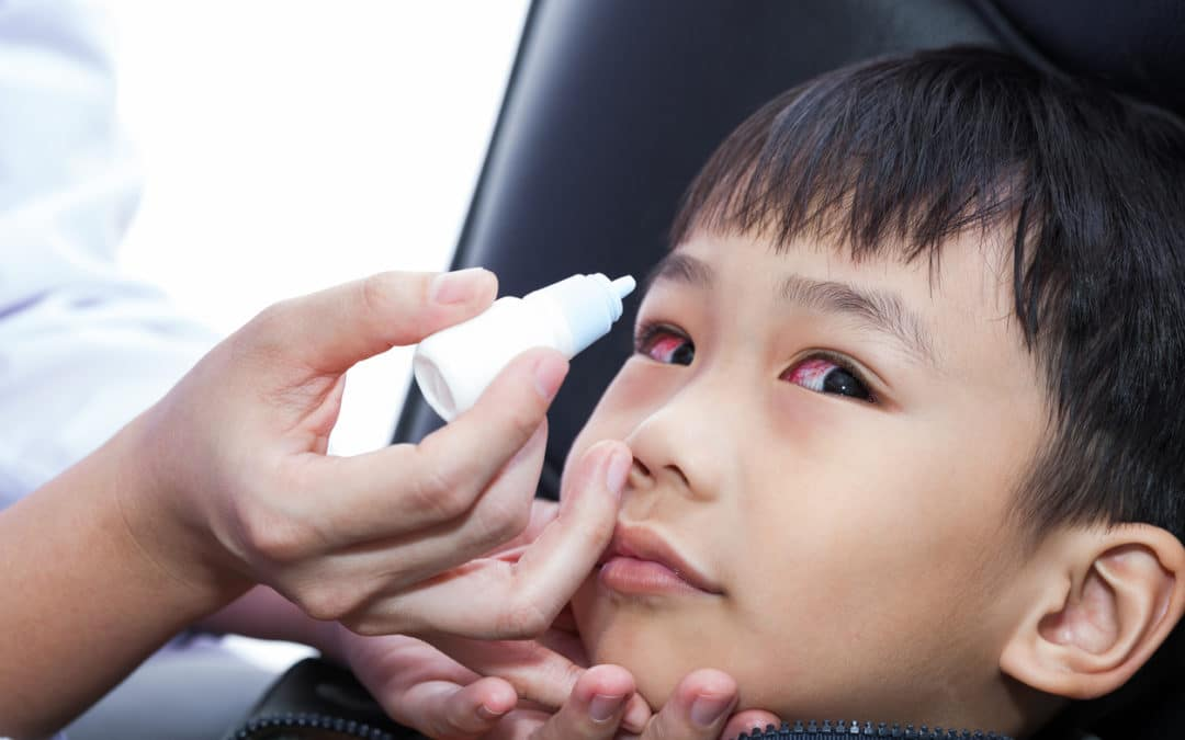 What To Do If Your Child Has Pink Eye
